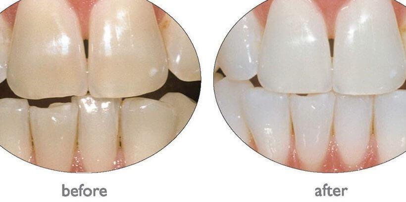 Акция на отбеливание зубов