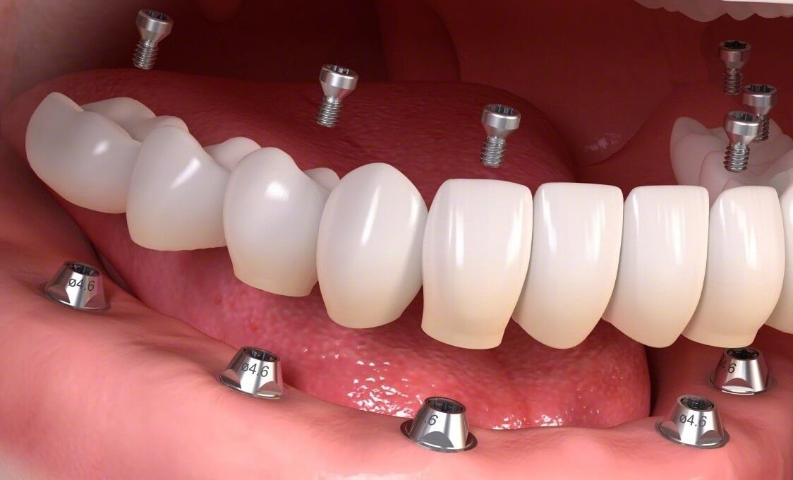 Протезирование нижней челюсти при полном отсутствии зубов