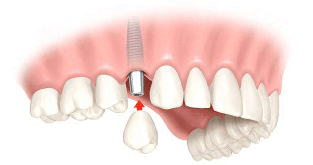 Коронка на имплант из диоксида циркония