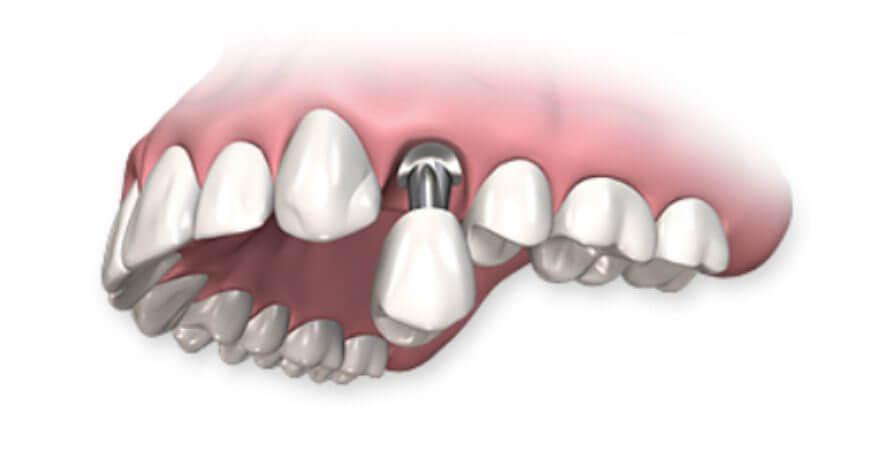 Имплантация зубов с низким сроком приживаемости