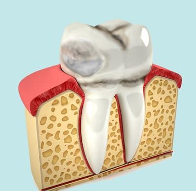 Лечение эрозии зуба