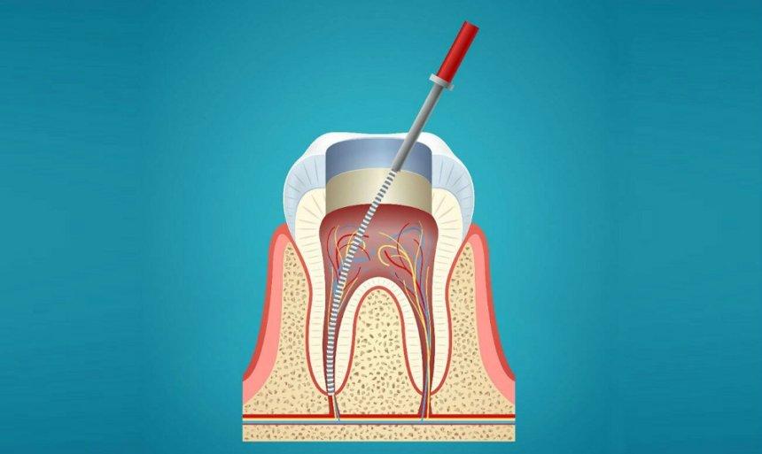 Перелечивание зубного канала