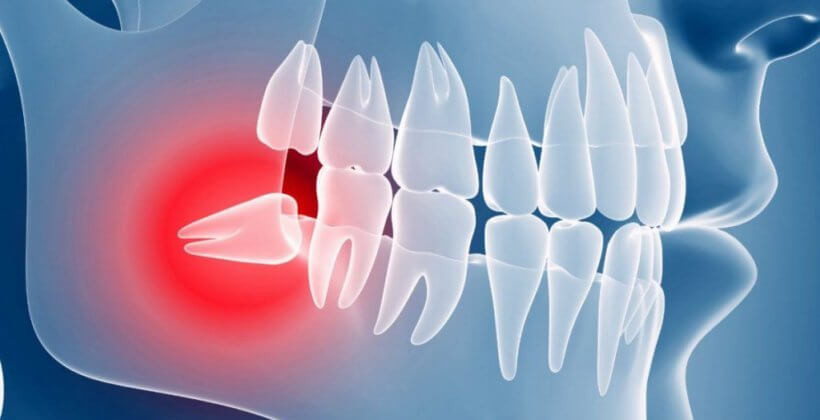 Удаление зуба мудрости: все за и против