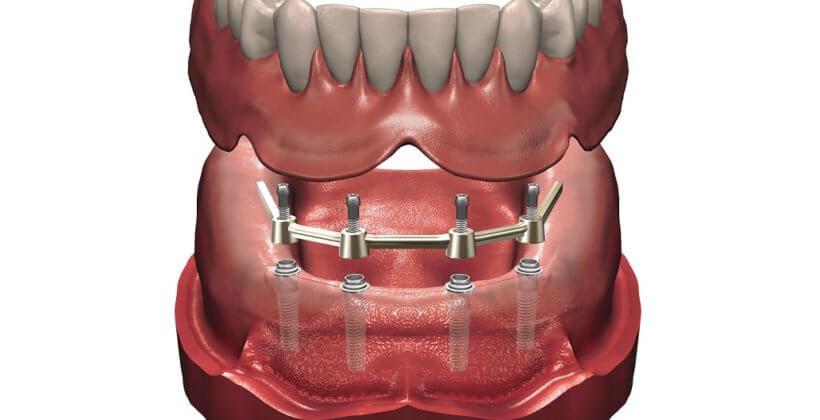 Балочный протез на имплантах– прогрессивный способ протезирования