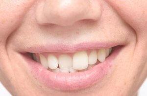 Неправильный рост зубов