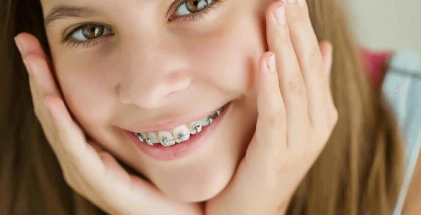 Что нужно знать и делать перед установкой брекетов на зубы