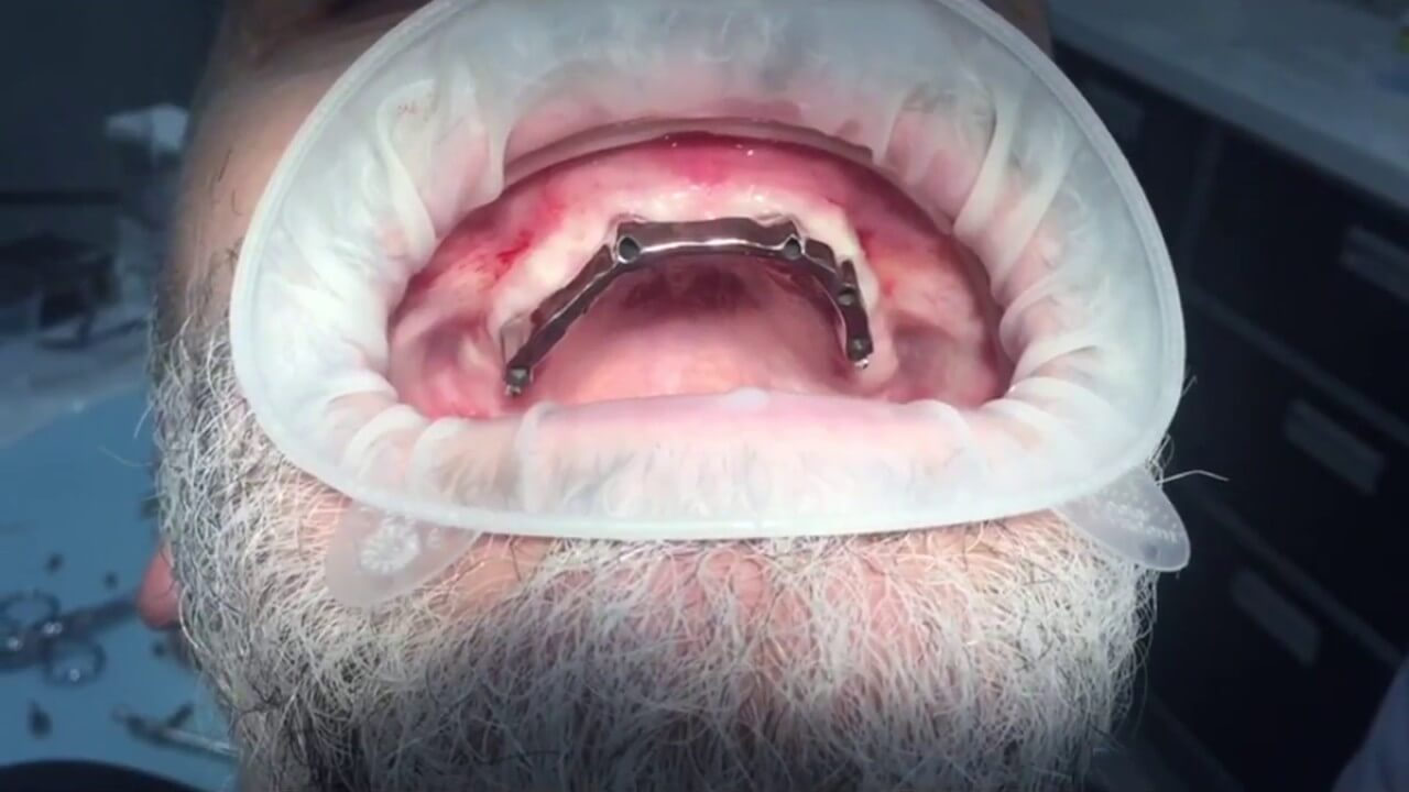 Имплантация All-on-6
