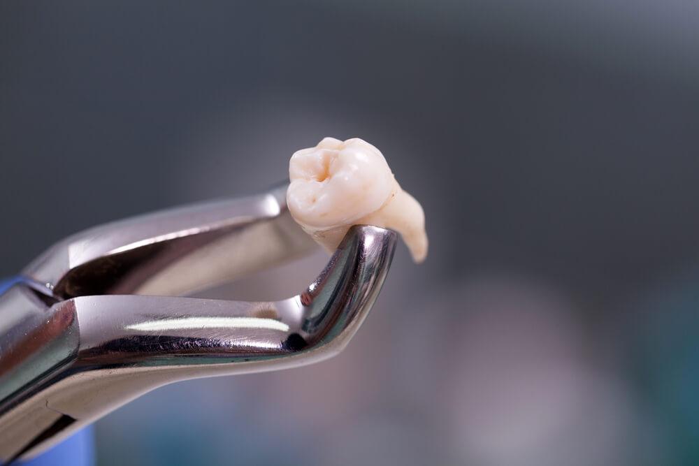 Удаление передних зубов