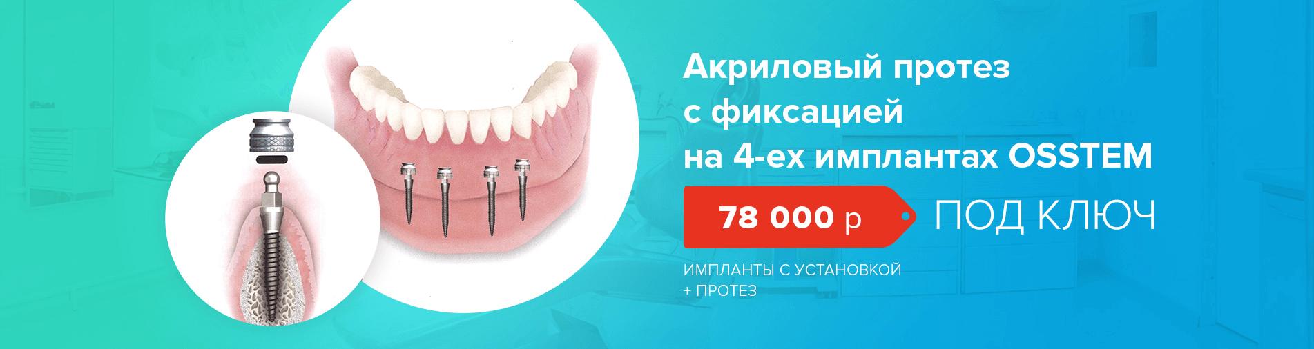 image_2020_08_21T15_44_04_864Z