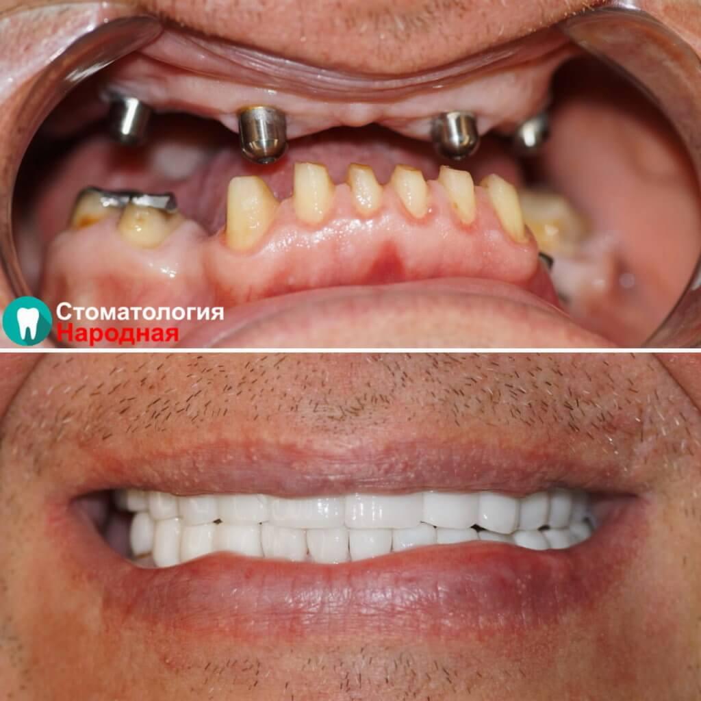 Тотальное восстановление зубов:  Импланты Osstem + Коронки из диоксида циркония