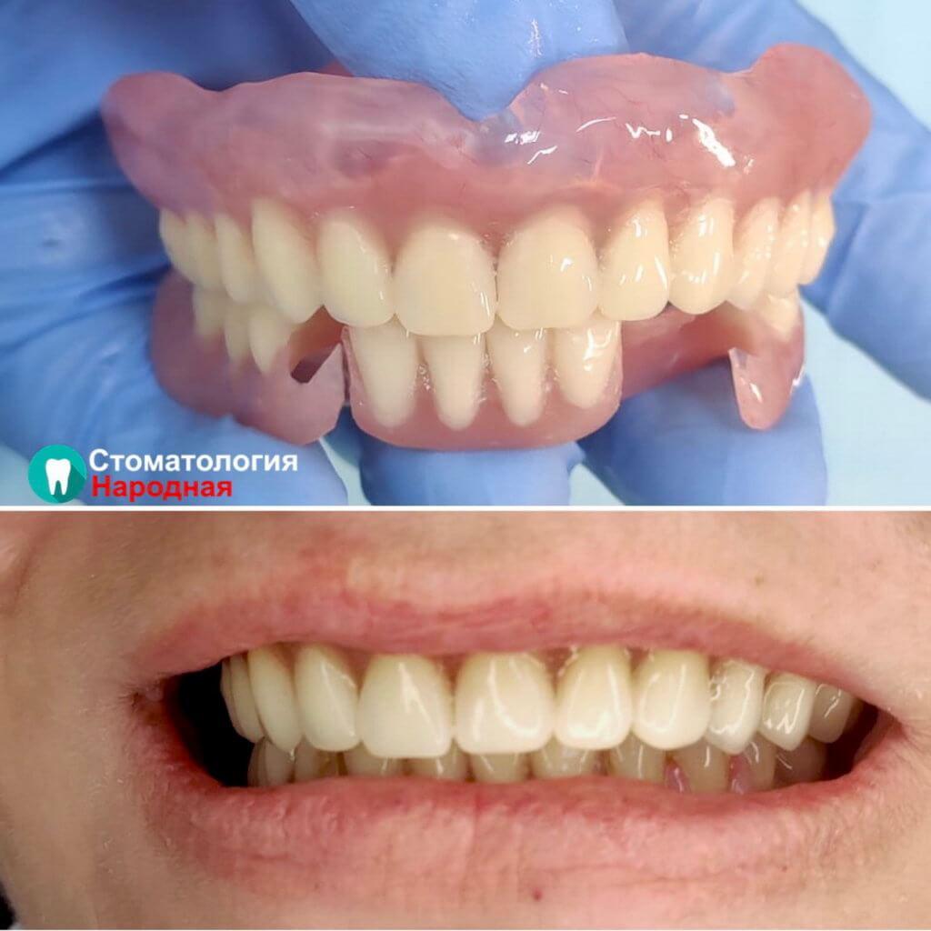 Восстановление зубов без имплантации с помощью акрилового протеза и протеза Акри-Фри (съемные протезы)