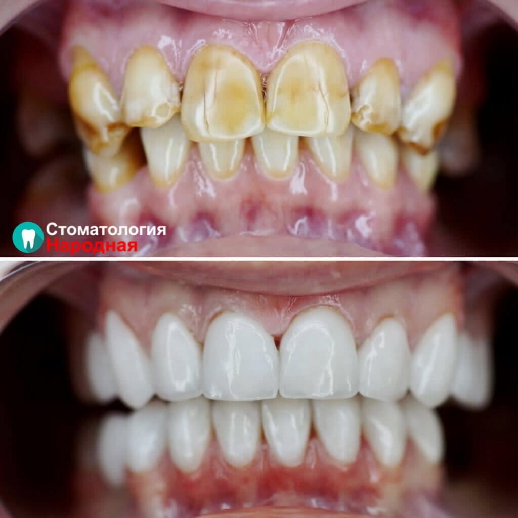Кардинальное преображение зубов с помощью 16 керамических виниров  Е-мах