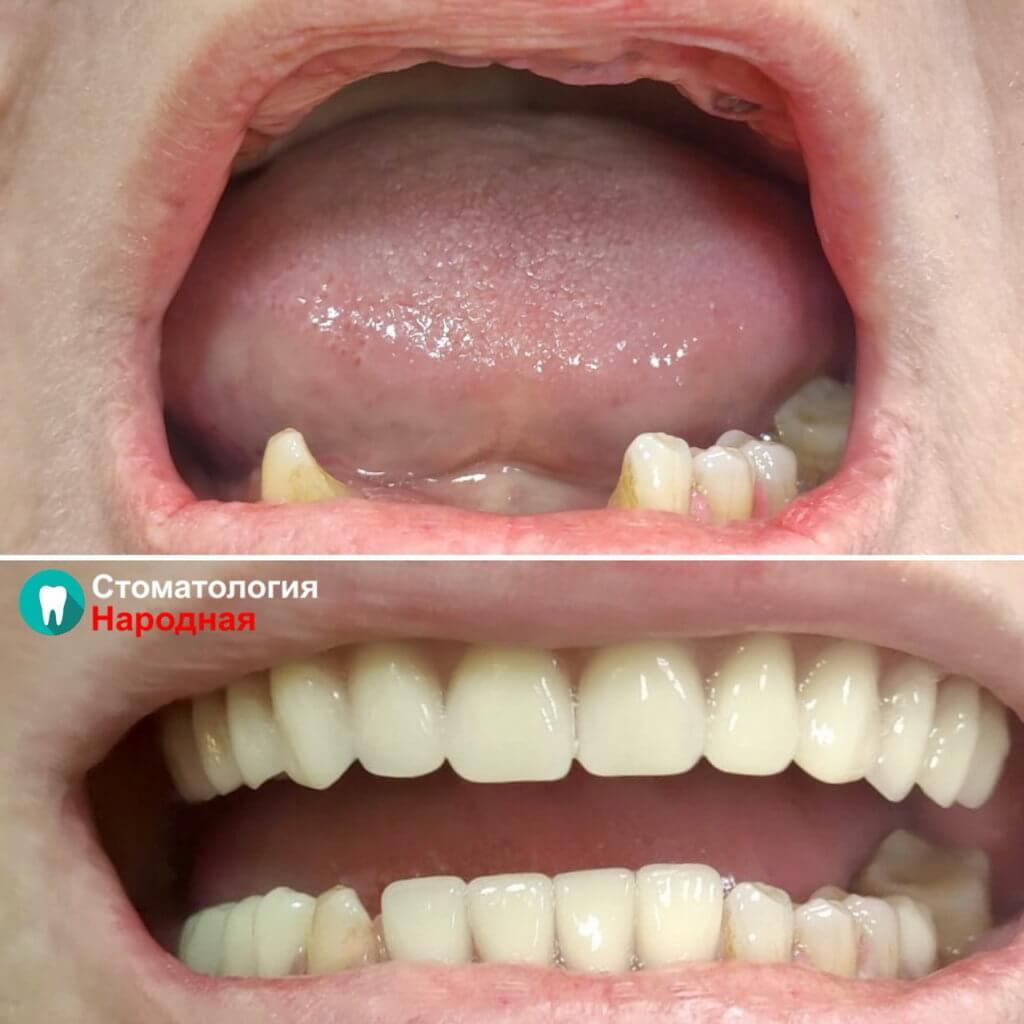 Восстановление зубов без имплантации с помощью съемных протезов (протез Акрил + протез Акри-Фри)