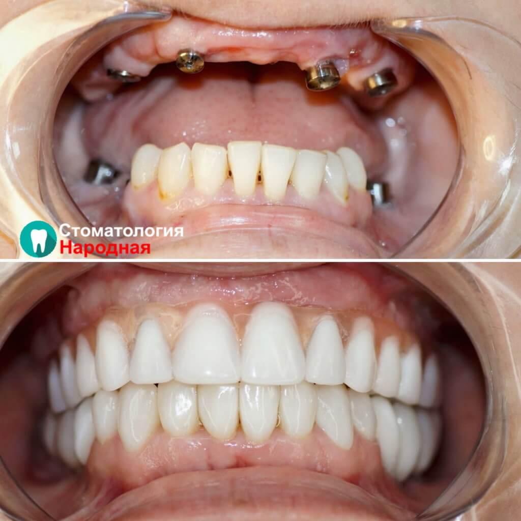 Тотальное восстановление зубов на 4 имплантах и балочного протеза на верхней челюсти + имплантация, керамические коронки и виниры на нижней челюсти