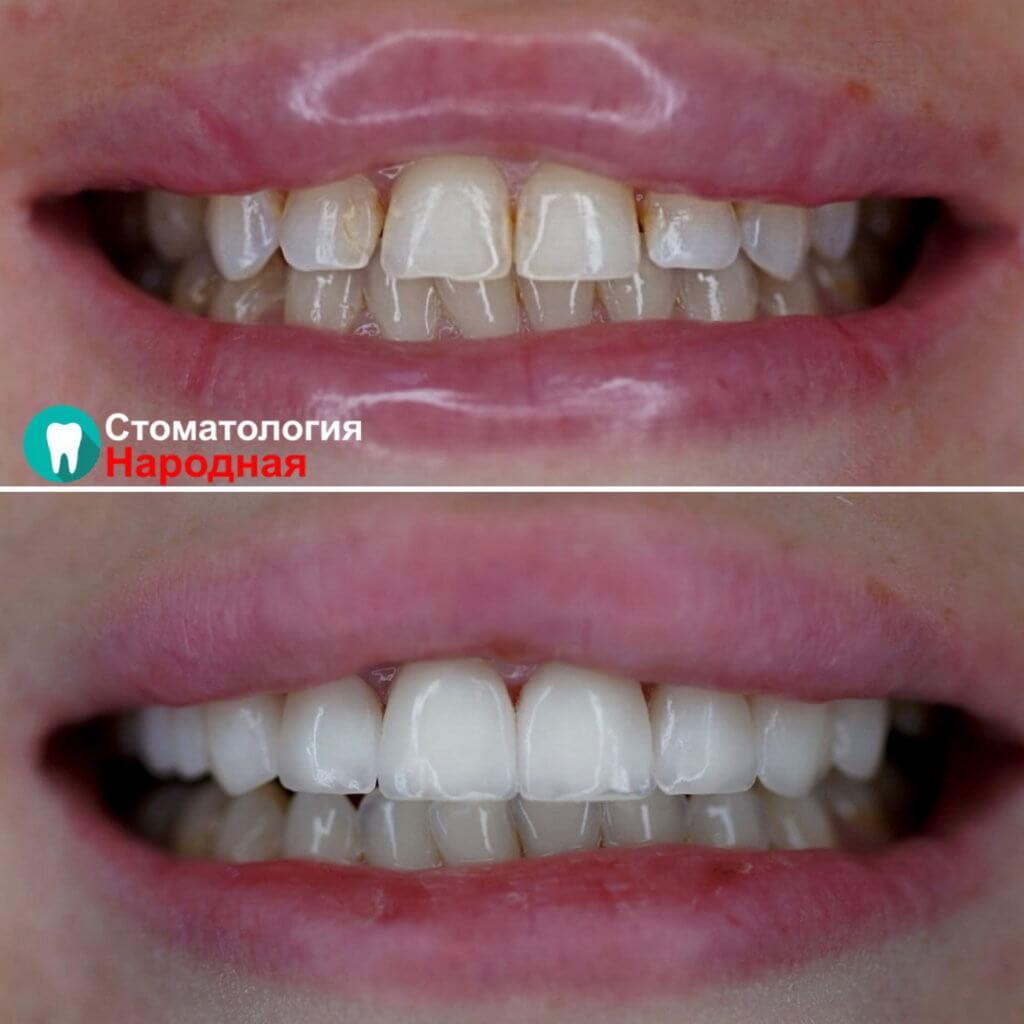 Преображение улыбки с помощью 8 керамических виниров Е-мах