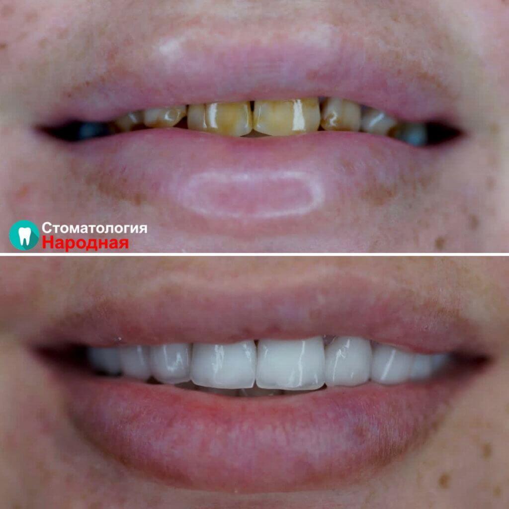 Преображение улыбки с помощью 16 керамических виниров Е-мах