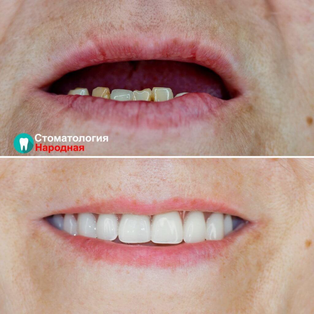 Полное восстановление зубов на верхней челюсти с помощью 4 имплантов и балочного протеза