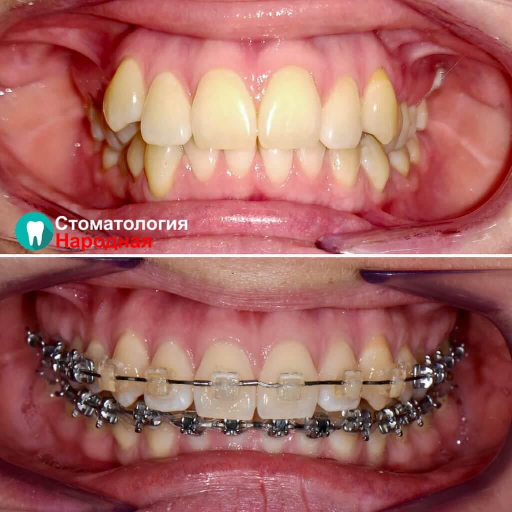 Результат ортодонтического лечения брекет-системой Damon