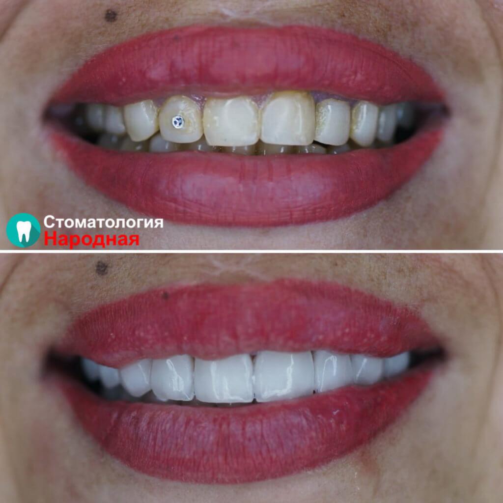 Преображение зубов с помощью установки керамических виниров Е-мах