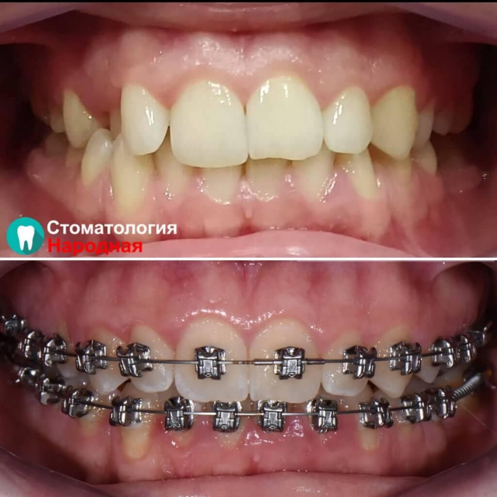 Результат ортодонтического лечения американскими брекетами всего за 5 месяцев