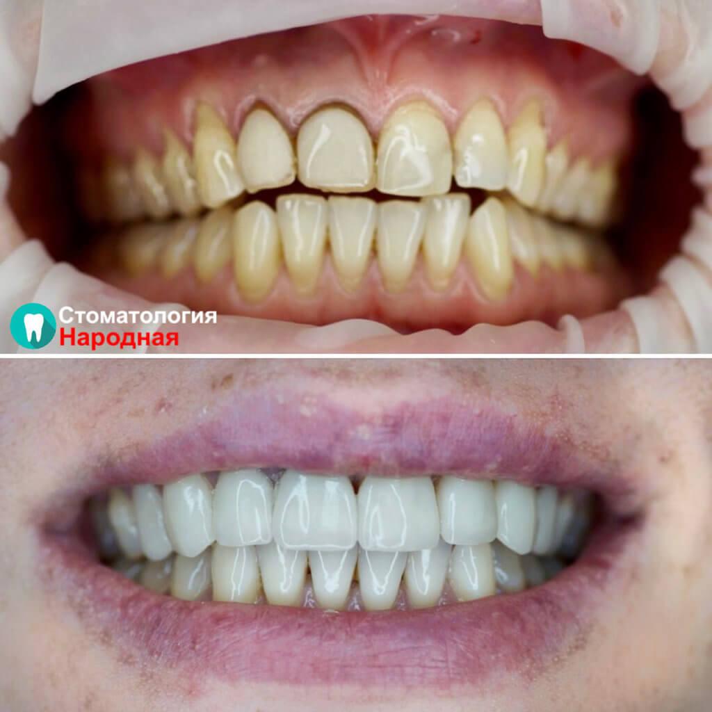 Проведено отбеливание зубов Zoom4, после чего под новый цвет зубов установлены 8 керамических виниров Е-мах