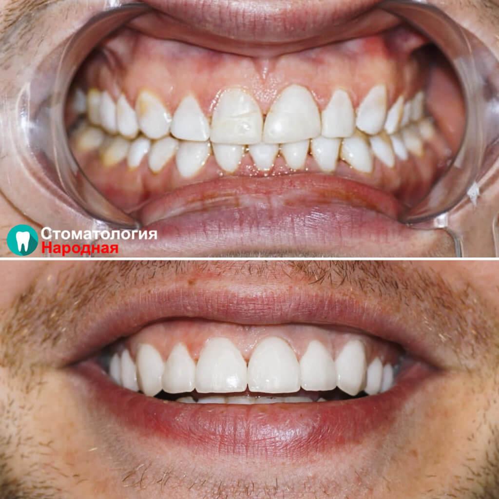 Установлено 10 керамических виниров Е-мах на зону улыбки естественного оттенка