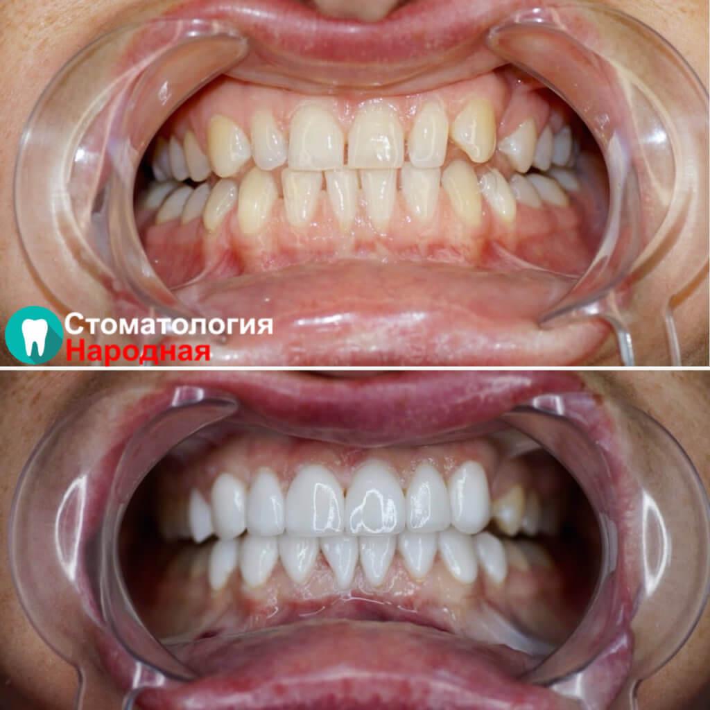 Установили 16 керамических виниров Е-мах белоснежного оттенка на зону улыбки