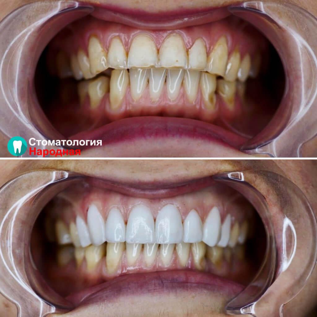 Установлено 8 керамических виниров Е-мах на зону улыбки белоснежного оттенка.
