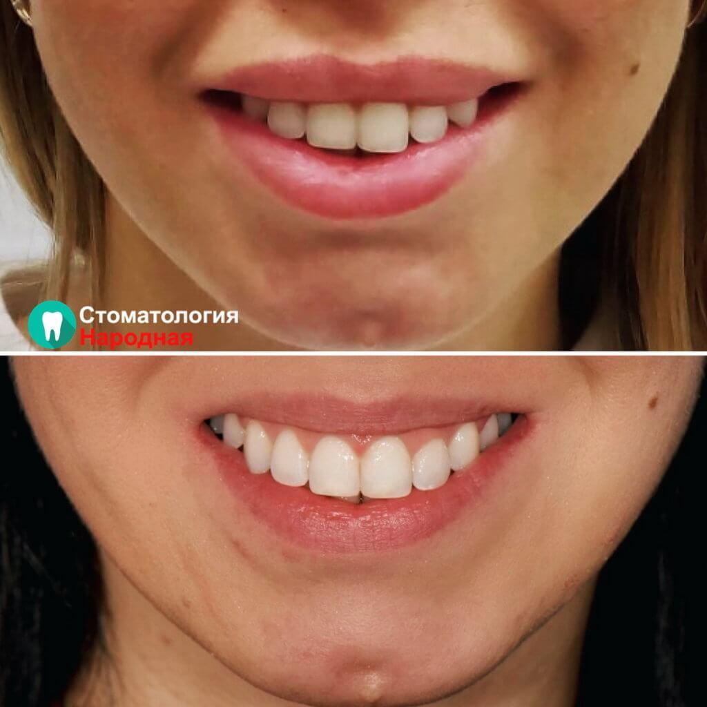Повторное ортодонтическое лечение пациентки брекетами