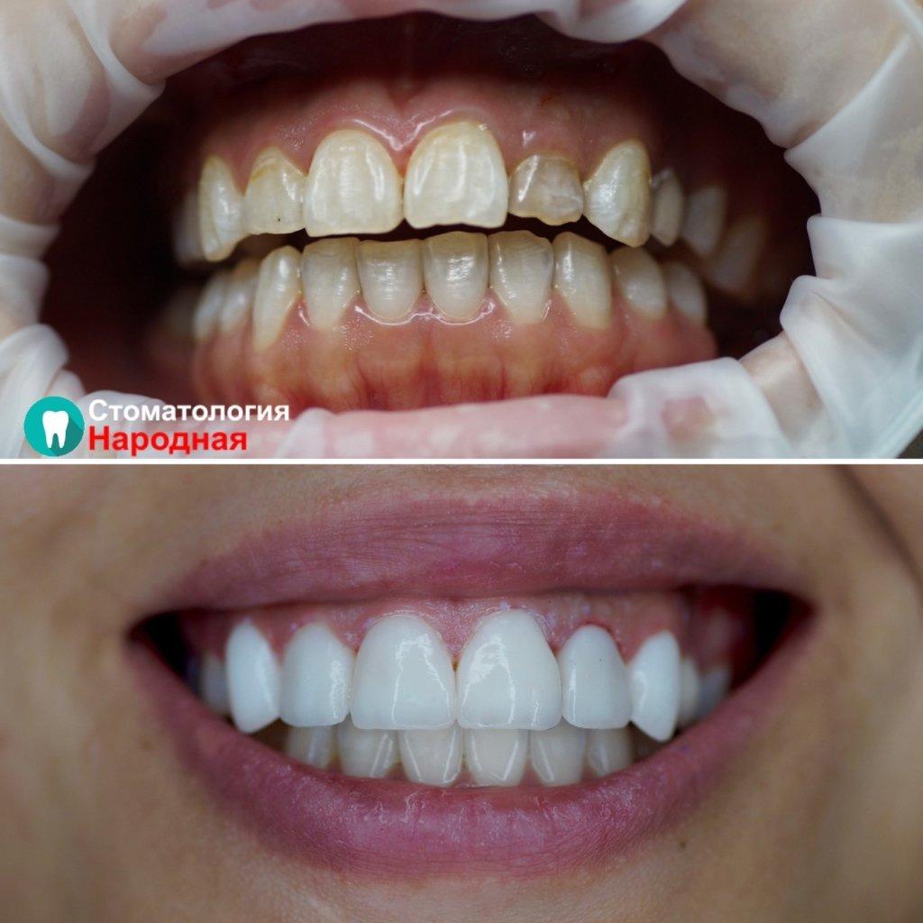 Для гармонизации улыбки проведена установка керамических виниров Е-мах и коррекция десны для устранения асимметрии